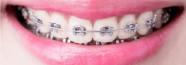 Why Dental Hygiene is so important during Orthodontic Treatment
