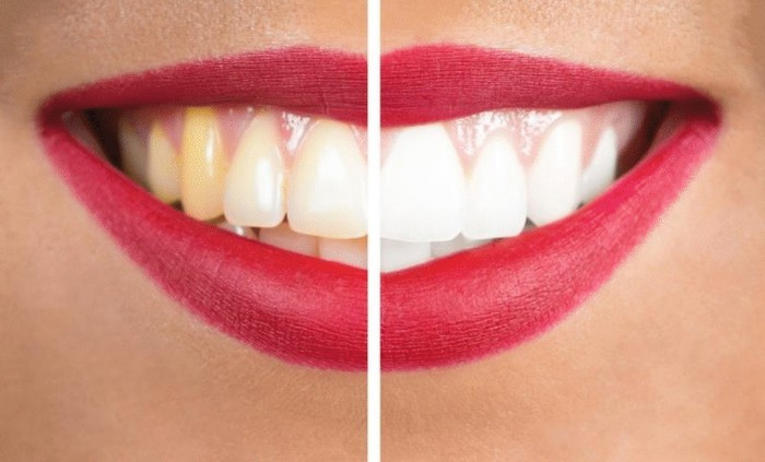 All your Teeth Whitening Questions Answered