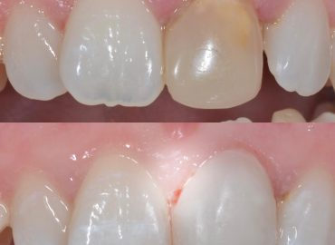 St Albans 5 star Cosmetic Dental Practice - Veneers – Ceramic or Composite which one should you choose to look and feel amazing